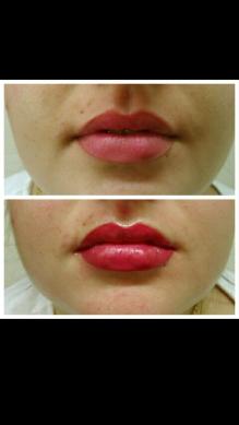 Antes y depsues del perfil de labios